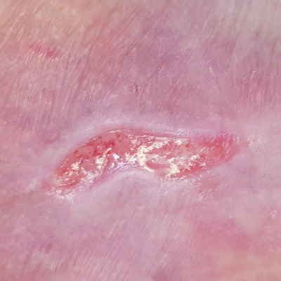 Terapia Vascolare - Piaghe, Ulcere, ferite difficili